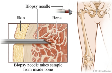 Skeletal view of lower body, with cross-section view of biopsy needle taking sample of bone