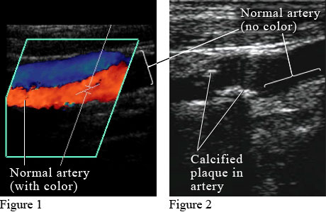 Doppler ultrasound images of arteries