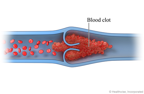 Cross section of a vein, showing blood clot formed around valve