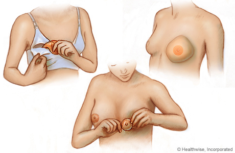 Three types of breast forms